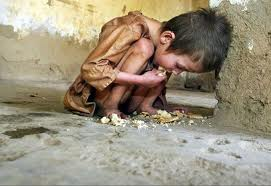 Starving Iraqi Child